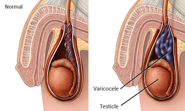 Low Cost Varicocelectomy in India